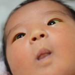 【新生児トラブル】新生児黄疸