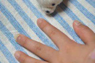 溶連菌感染症の後遺症で、手足の爪が剥がれた娘