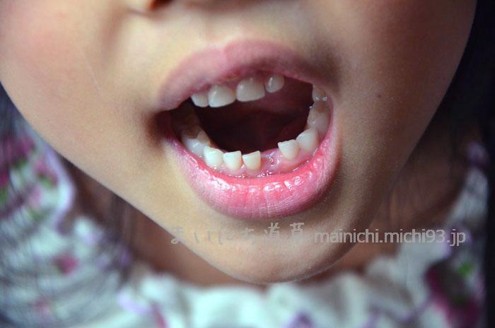 6歳2か月、最初の乳歯が抜けた